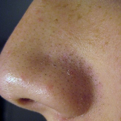 How to remove black spots on face