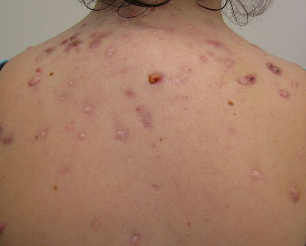 What Acne Says About Your Health