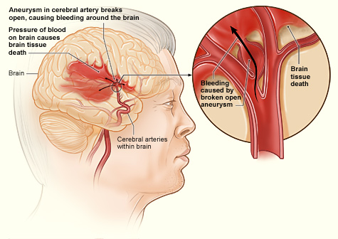 How to prevent a stroke?