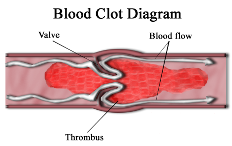 How To Prevent A Blood Clot