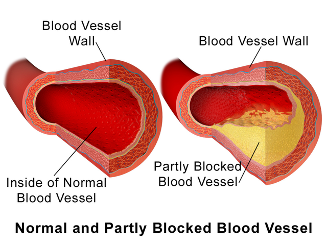 How To Prevent Clogged Arteries