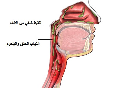 How To Prevent Post Nasal Drip