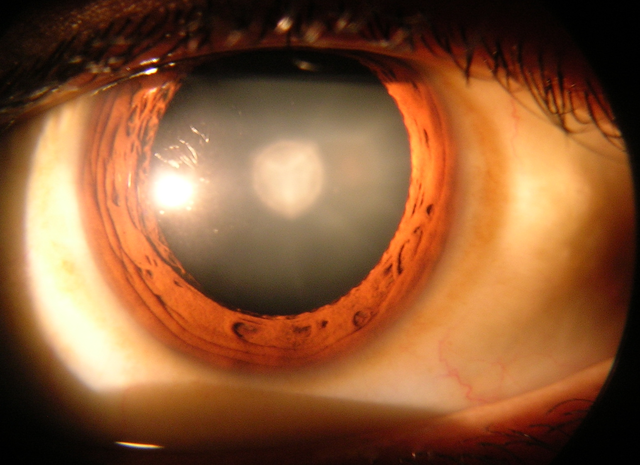 How To Prevent Cataracts