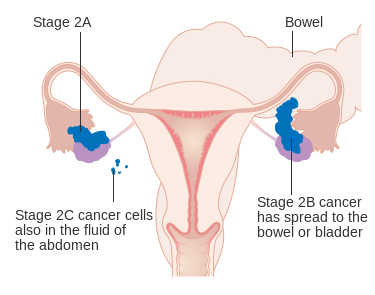 How To Prevent Ovarian Cancer