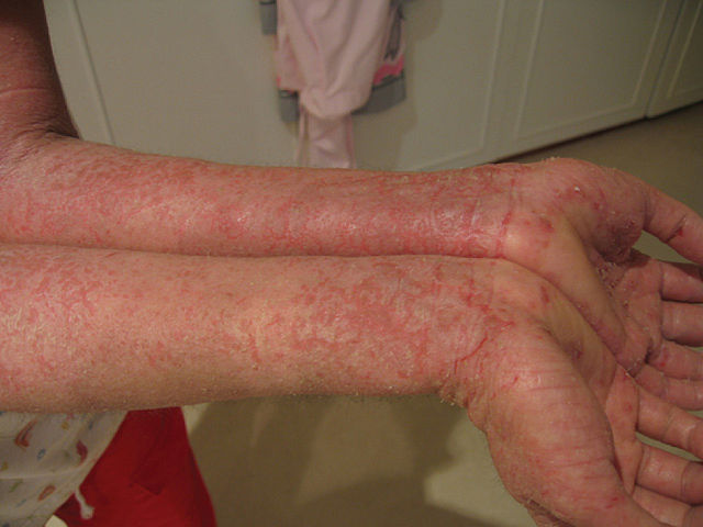 How To Prevent Eczema