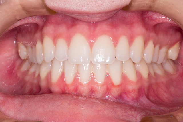 How To Prevent Gingivitis