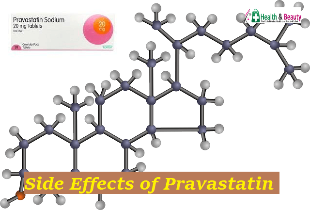 Side Effects of Pravastatin