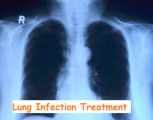 Lung Infection Treatment