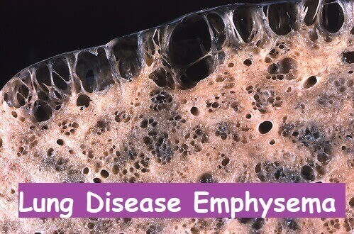 Lung Disease Emphysema