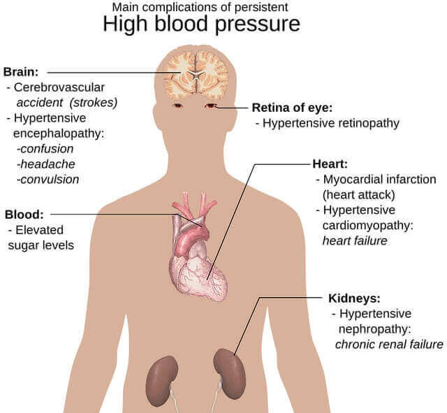 Etiology Of Hypertension