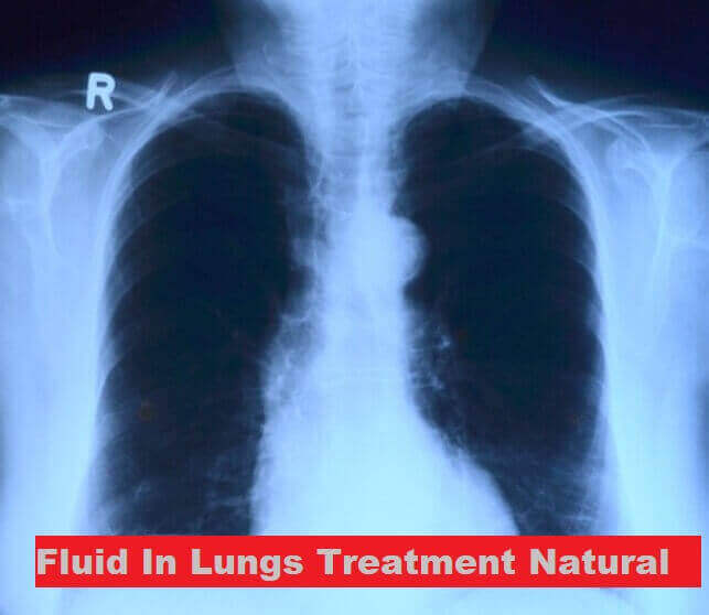 6 Fluid In Lungs Treatment Natural 1