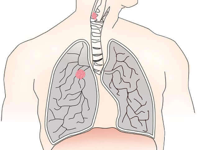 Stage 4 Lung Cancer