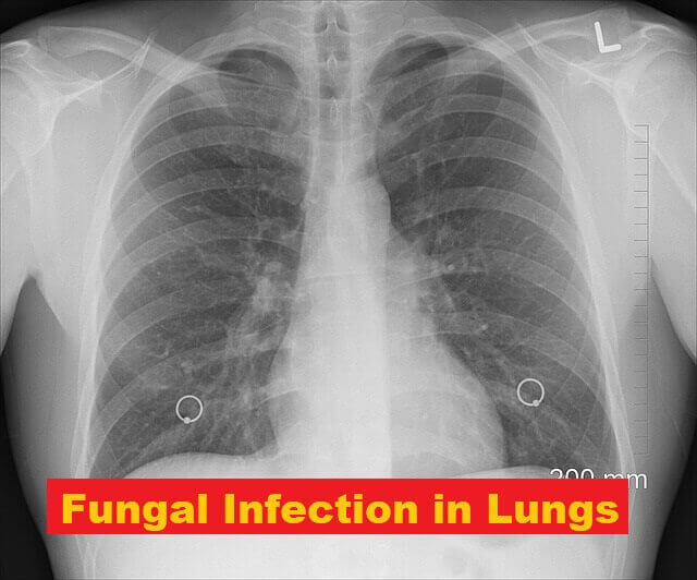 Fungal Infection in Lungs