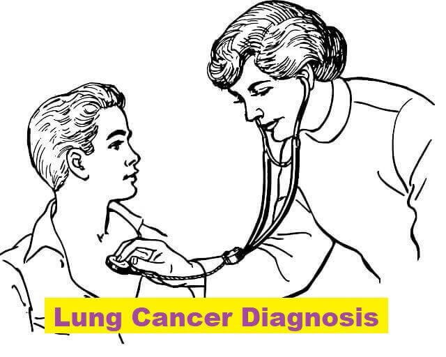 Lung Cancer Diagnosis