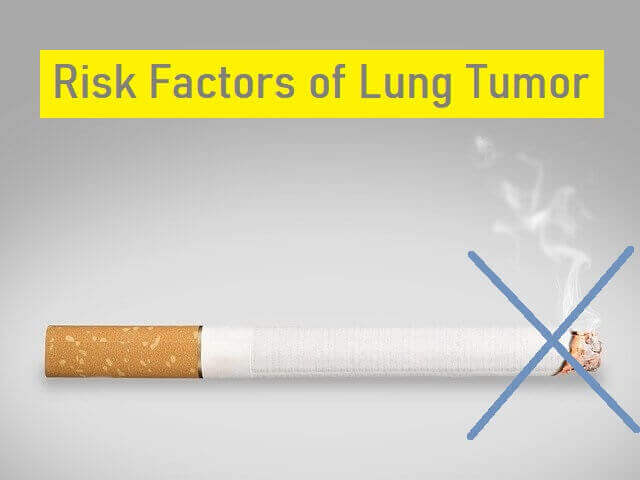 Risk factors of Lung tumor