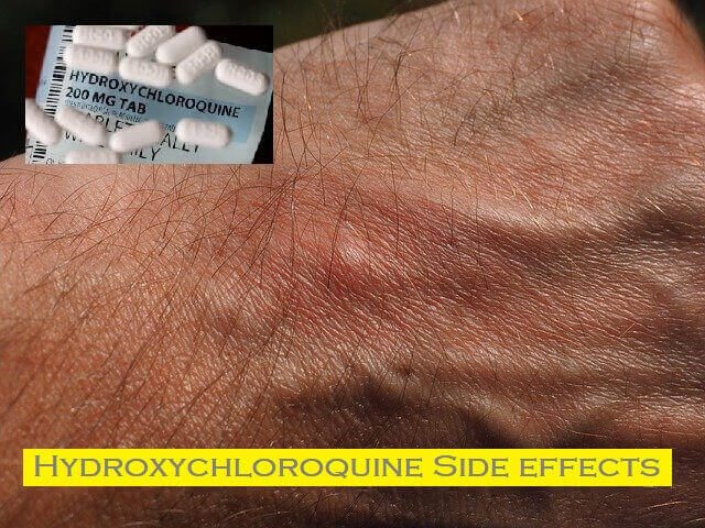 Hydroxychloroquine Side effects - Itching