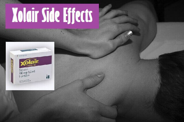 Xolair Side Effects - musculoskeletal pain